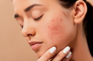 How to get rid of facial Acne Learn the easy and natural ways