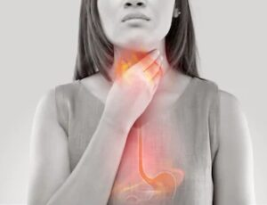 Some effective tips to solve gastric problems